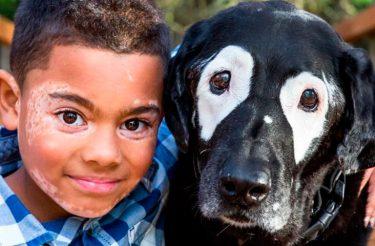 Cão ajuda menino a aceitar o próprio rosto