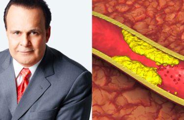 """""""A minha Veia tá entupida de COLESTEROL, como eu DESENTUPO?"""" Dr Lair Ribeiro explica"""